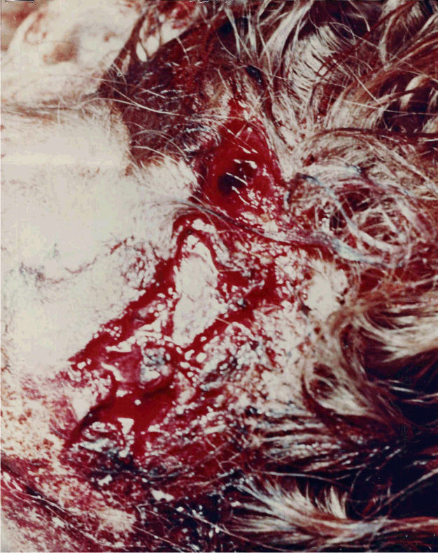 Wounds to the head of Colette