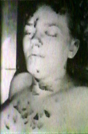 Wounds to the upper body of Colette MacDonald